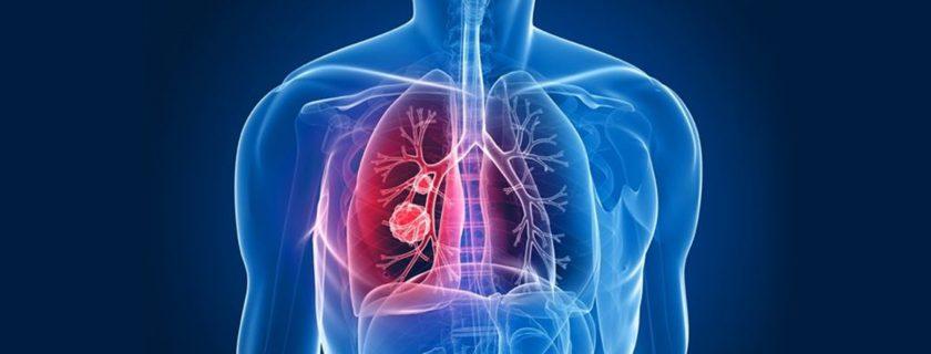 Identification of tuberculosis susceptibility gene